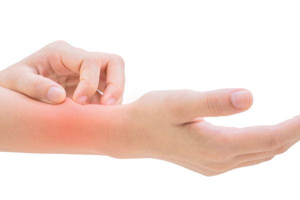 Itch, Itch, Itch: Say Goodbye to the Symptoms of Eczema