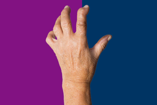 February is Rheumatoid Arthritis Awareness Month